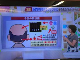 毛髪再生医療実験のニュースを放送するテレビ番組のスクリーンショット画像