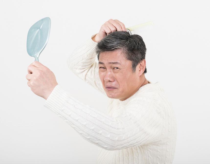 加齢による薄毛の原因を知っていますか?メカニズムを解説