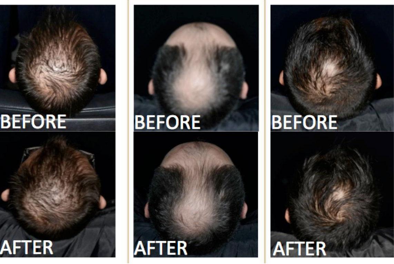 リデンシルを用いて薄毛が改善した被験者の頭頂部の画像
