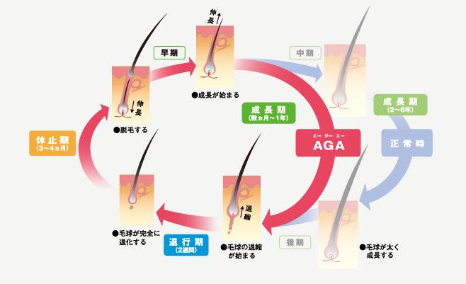 AGA(男性型脱毛症)のヘアサイクルが乱れるメカニズムの図