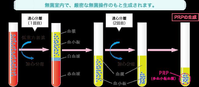 PRPの精製法を図にした画像