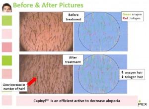 キャピキシル使用前後の頭皮の状態の変化の写真