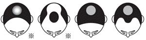 リグロが効果を発揮する薄毛の進行状況を示した図